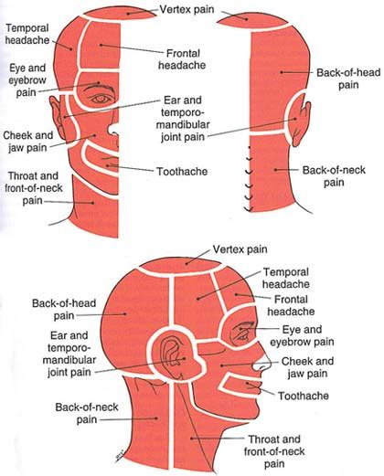 stiff shoulder joint picture 13