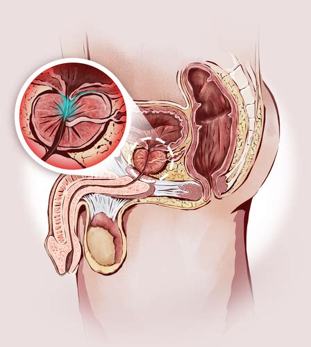What causes an enlarged prostate picture 2