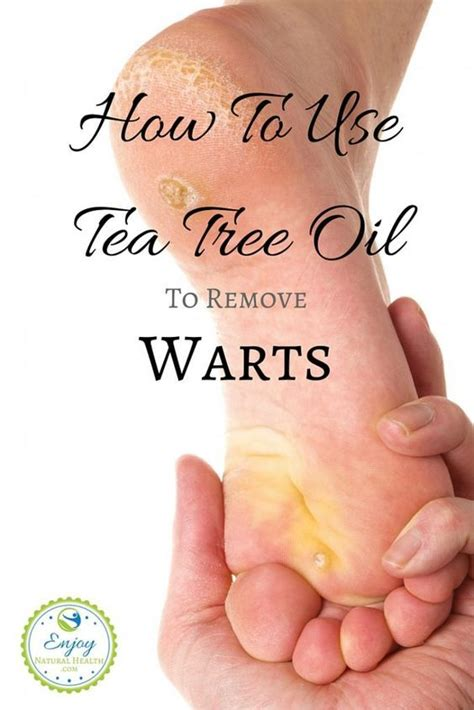 warts how to take care of them picture 3