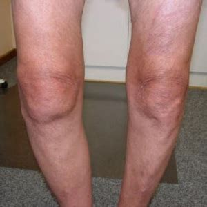 degenerative joint disorder picture 11