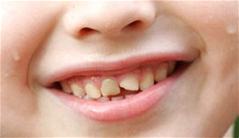 chipped baby teeth picture 18