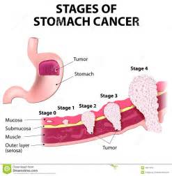 stomach colon cancer picture 2