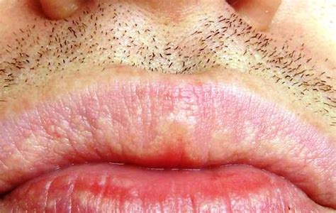 what causes purple marks on lips and when picture 13
