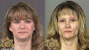 skin revitalize for meth user picture 18