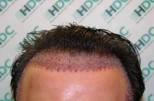 indulekha cure alopecia picture 1