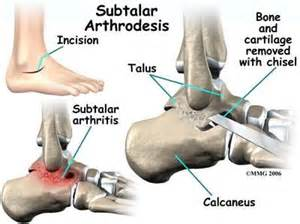 cpt for pain injection of subtalar joint picture 9