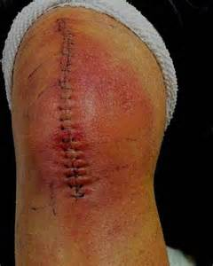 yeast infection in knee joint picture 13