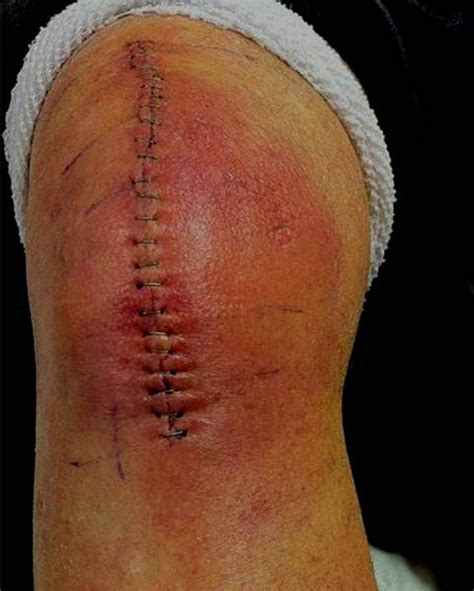 yeast infection in knee joint picture 14