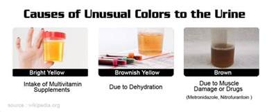 odd urine smell no bladder infection picture 5