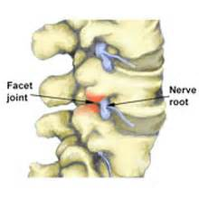 facet joint pain picture 13
