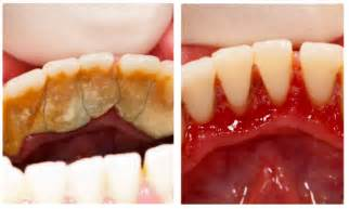 cream of tartar to whiten teeth picture 14