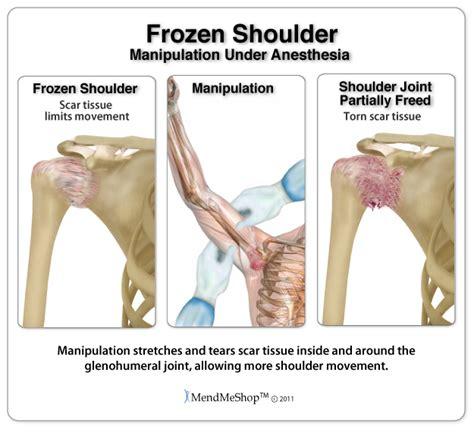 stiff shoulder joint picture 2