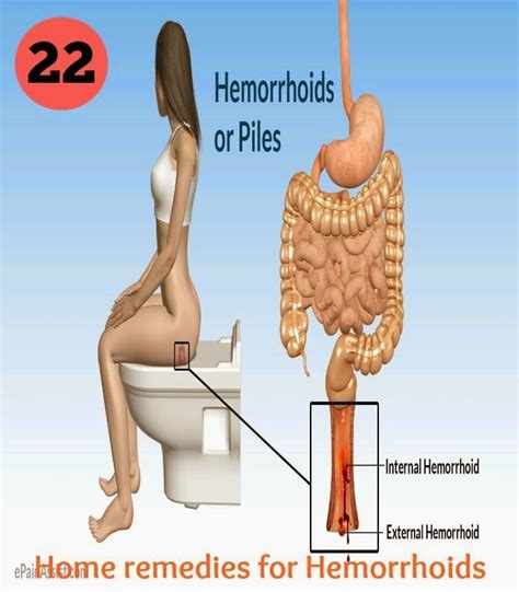 treating hemorrhoids naturally picture 3