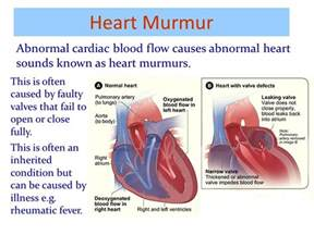 abnormal blood flow picture 5