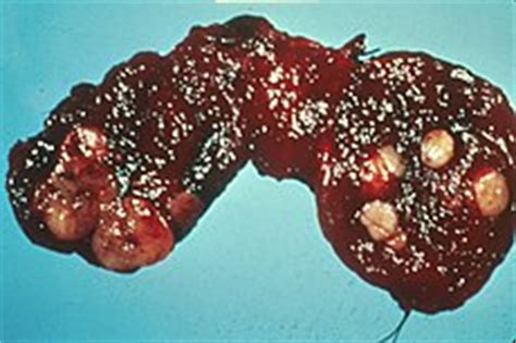thyroid colloid cyst definition picture 14