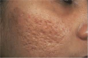 pictures of acne scars picture 1