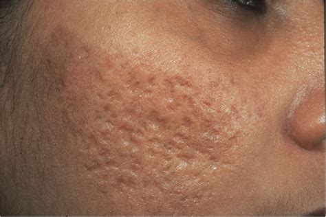Acne scarring picture 1