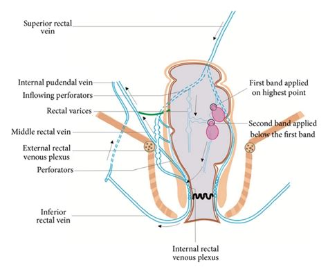 anatomy of the liver picture 10