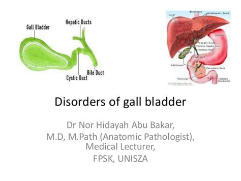 foods for gall bladder disease picture 10