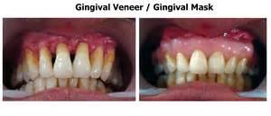 dental veneers for teeth picture 6