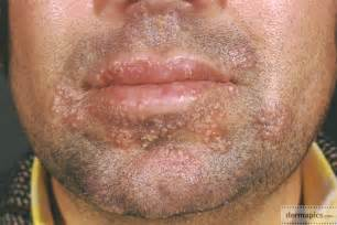herpes in the mouth picture 1