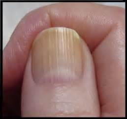 thyroid fingernail picture 2