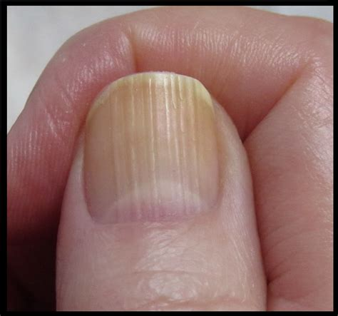 vitamins for nail fungus picture 9