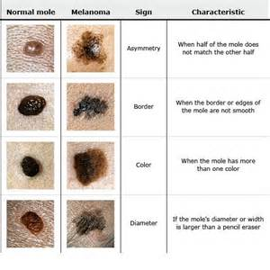 abcs of skin cancer picture 3