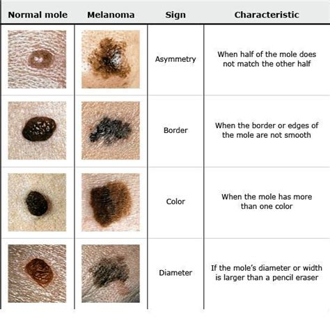 abcs of skin cancer picture 6