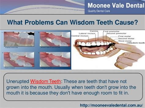 can wisdom teeth cause problems with the sinus picture 13