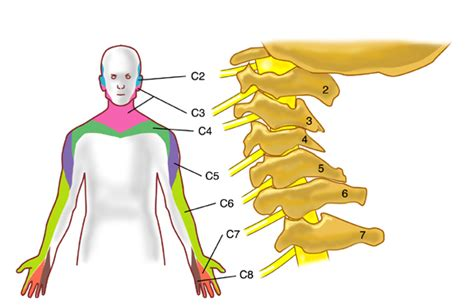 driver muscle pain picture 11