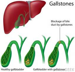 gall bladder symptoms after use of drug picture 3