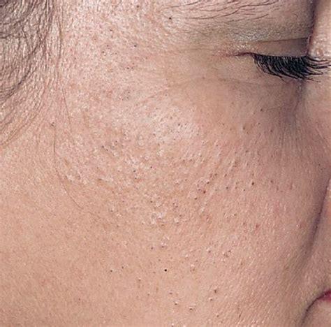 milia skin picture 3