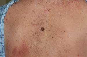 stretch marks and lipoma picture 19