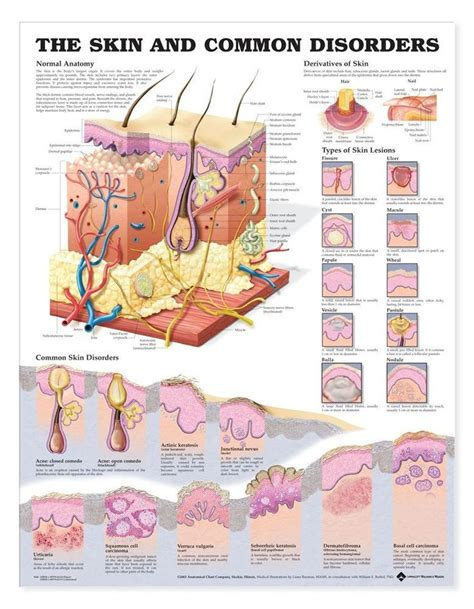 types of skin disorders picture 9