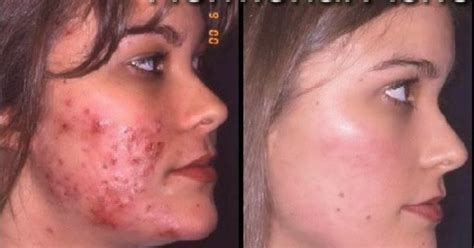 hormones for acne picture 5
