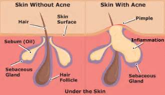what is the cause for acne picture 19