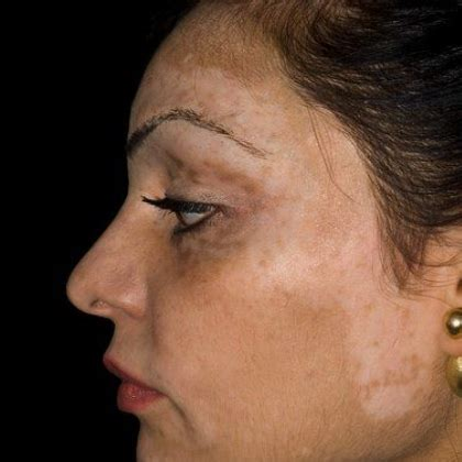 skin pigment disorders picture 14