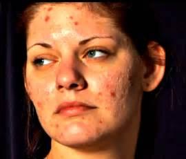 skin picking at picture 15