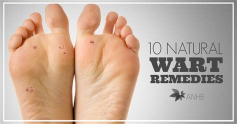 natural wart cure picture 3