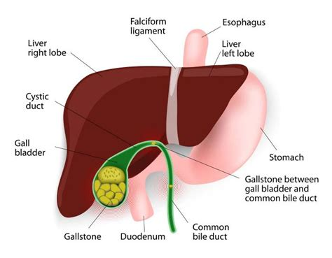 gall bladder surgery and weight loss picture 3