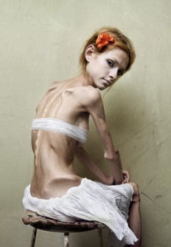 anorexic weight loss range picture 14
