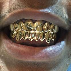 wholesale custom gold teeth grills picture 10
