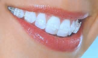 clear teeth brace picture 5