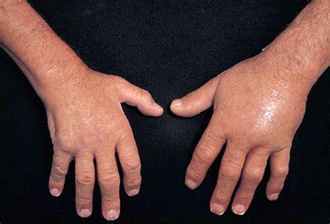 skin infection with knuckle pain picture 15