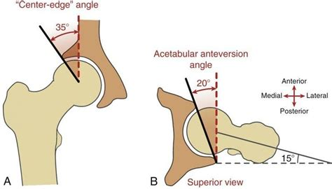 chronic muscle contraction picture 7