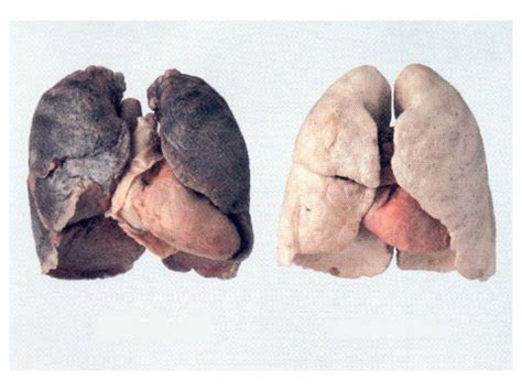 what damage second hand smoke can cause picture 5