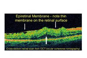 best supplements for epiretinal membrane picture 3
