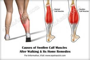 Swelling, muscle spasm, blood flow picture 3