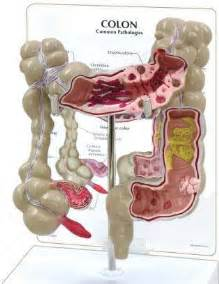 bacterial infections in bowels picture 1
